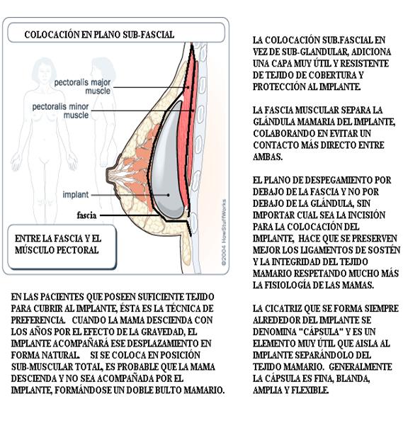 Duda subglandulares vs submusculares ??? :s